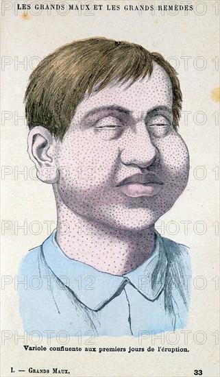 Smallpox victim, c1890. Artist: Unknown